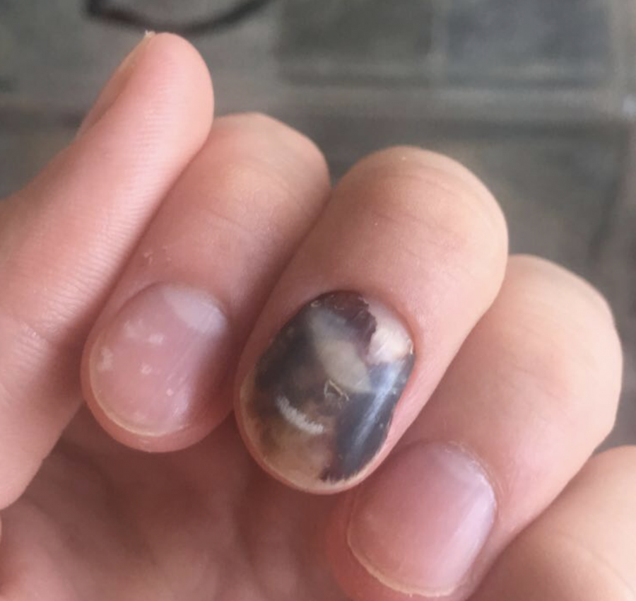 Losing a fingernail … patience and regrowth